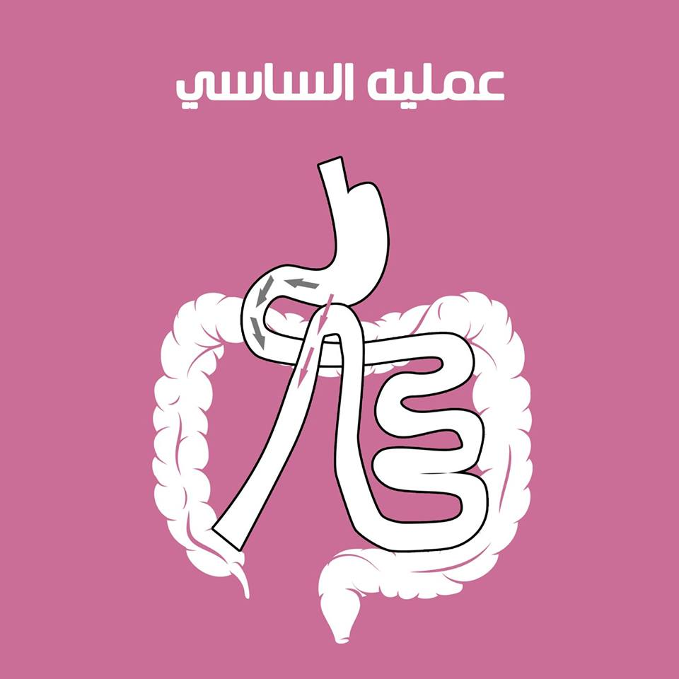 b25783a36 عملية تحويل مسار المعدة بالمنظار – مركز دكتور تامر سعيد لجراحات ...